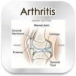 arthritis remedy